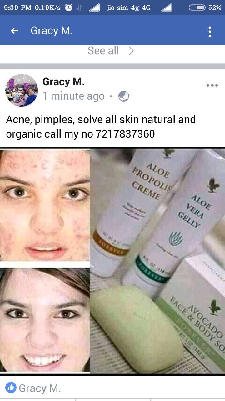 न्यूट्रीशन - 9 : 39 PM 0 . 19K / s © jio sim 4g 4G 2 O 52 % + Gracy M . See all > Gracy M . 1 minute ago · ☺ Acne , pimples , solve all skin natural and organic call my no 7217837360 PROPOLIS ALOE CREME ALOE VERA GELLY SELE 10 E & BODY SO VOCADO Gracy M .  - ShareChat